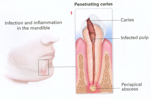 Infection and inflammation in the mandibles.
